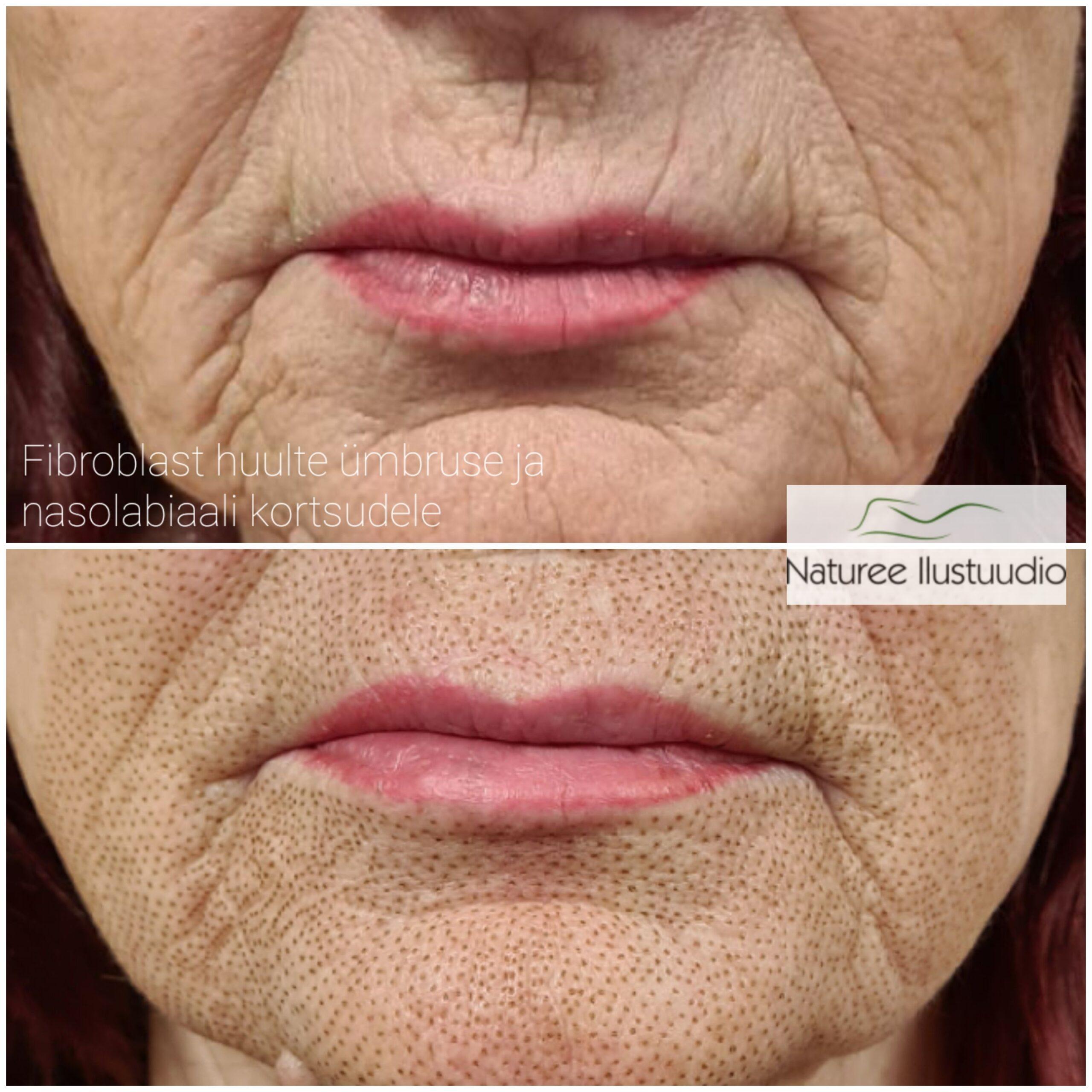 fibroblast suu ümbruse kortsudele ja huulte ümbrusele